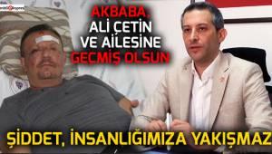 Akbaba; Ali Çetin ve ailesine geçmiş olsun