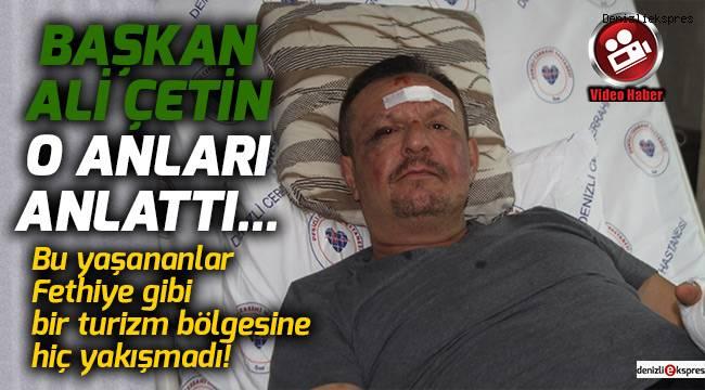 Başkan Ali Çetin o anları anlattı...