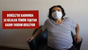 Denizli'de karnında 15 kiloluk tümör taşıyan kadın yardım bekliyor