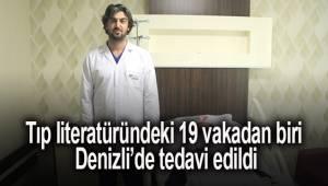 Tıp literatüründeki 19 vakadan biri, Denizli Tekden Hastanesi'nde tedavi edildi