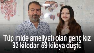 Tüp mide ameliyatı olan genç kız, 93 kilodan 59 kiloya düştü